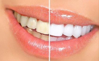 Teeth Whitening (Bleaching)